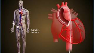 How Heart Attack occurs and the Treatment of Choice : Angiography and Angioplasty