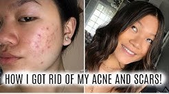 hqdefault - Pictures Of Moderate Acne