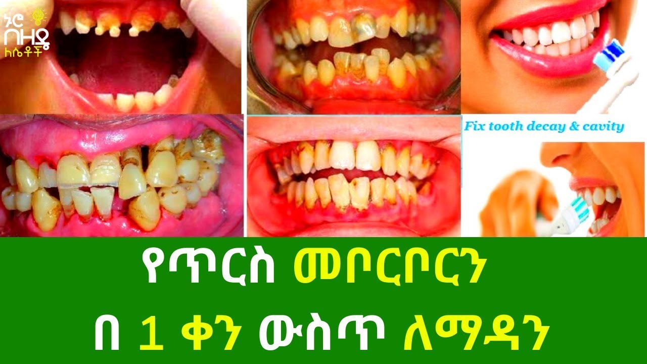 How to protect your teeth from cavity