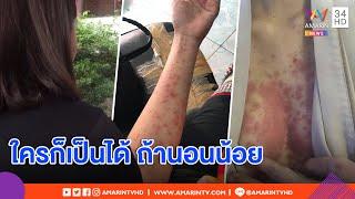 ทุบโต๊ะข่าว : สาวเปิดใจเจอโรคตุ่มหนองขึ้นเฟะทั้งตัว สุดเจ็บแผลลาม ชี้ทุกคนมีสิทธิ์เสี่ยง 20/08/62