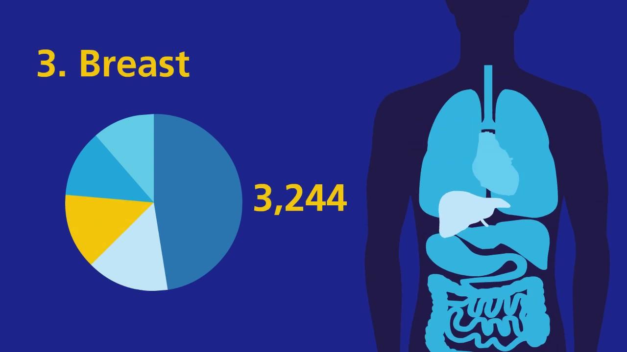 Cancer statistics | Irish Cancer Society