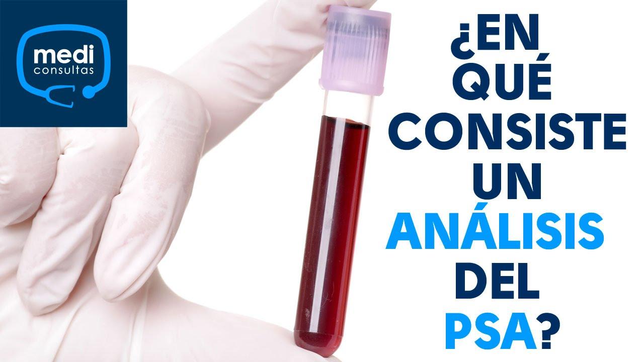 Cirugía de próstata y prueba de PSA