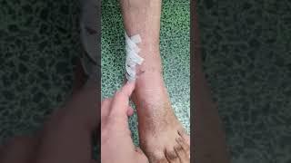 """ניתוח תיקון סחוס בקרסול - השתלת סחוס בקרסול - ד""""ר פלמנוביץ' אסקיאל - אורתופד מומחה כף רגל וקרסול"""