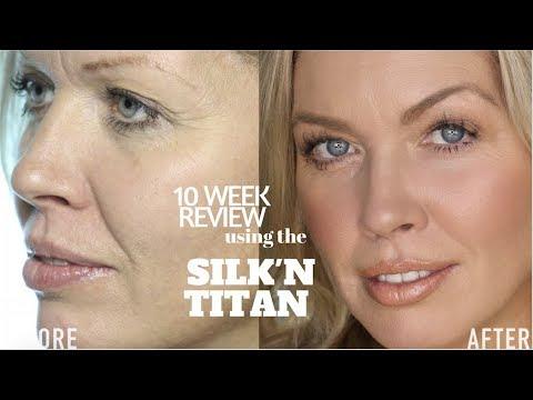 10 WEEK Silk'n Titan Review | Julia Dantas