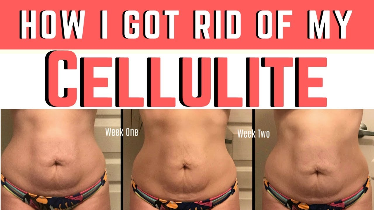 Cellulite On Stomach Here Is My Best Tip 2018 Youtube