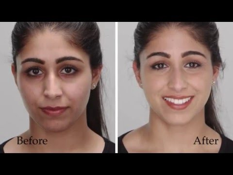 How To Erase Dark Circles or Discoloration with Amazing Cosmetics | Sephora