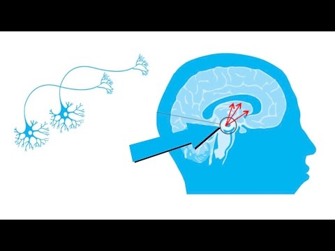 GDNF: A future treatment for Parkinson's? Part 2 of 2