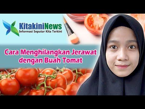 cara-menghilangkan-jerawat-secara-alami-dengan-tomat