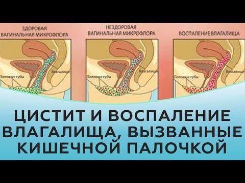 Цистит и воспаление влагалища, вызванные кишечной палочкой