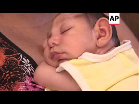 Brazilian Zika mother: 'my son is a normal baby'