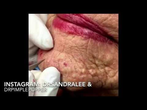 Updated version of milia & blackheads TNTC: 1st treatment. For medical education- NSFE.