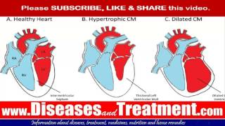 Cardiomyopathy : Causes, Diagnosis, Symptoms, Treatment, Prognosis