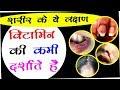 जाने शरीर मे कौन से विटामिन की कमी हो रही है और विटामिन की कमी को कैसे दूर करें |Hindi