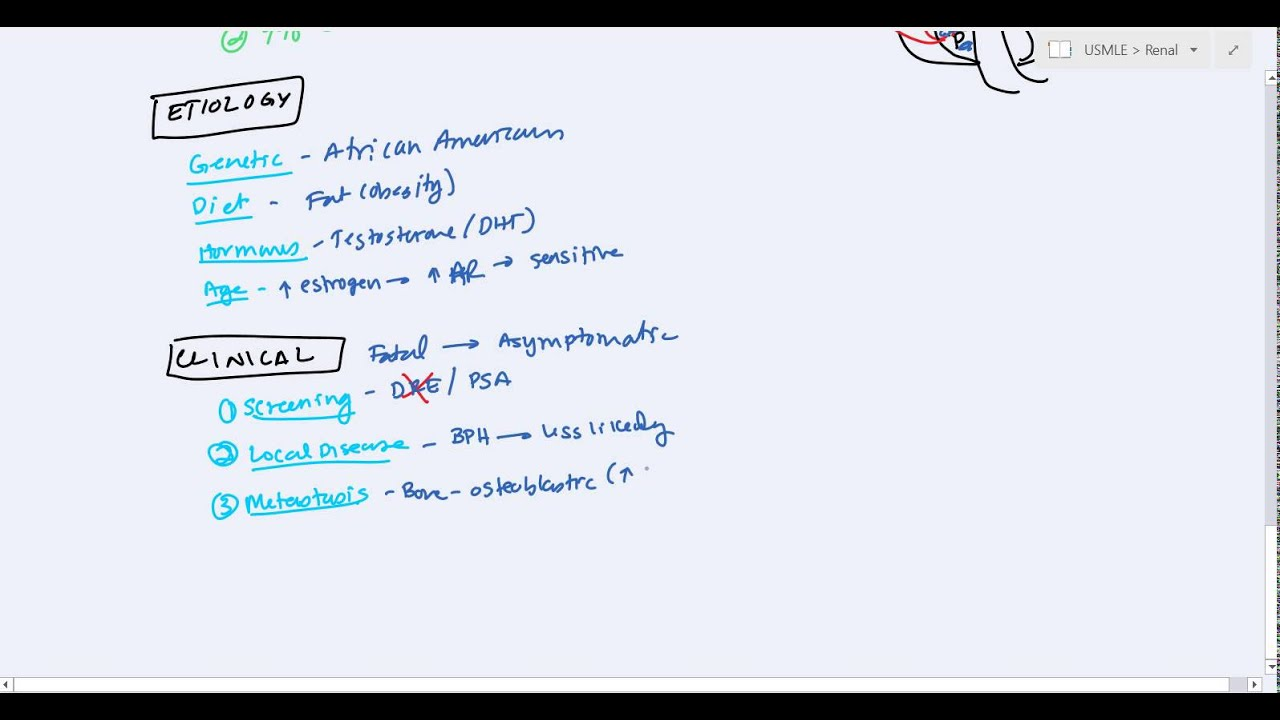 Benign Prostate Hyperplasia Bph And Prostate Cancer For Usmle Step 2