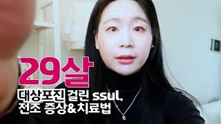 29살에 대상포진 걸린 이야기 ssul. #대상포진전조…