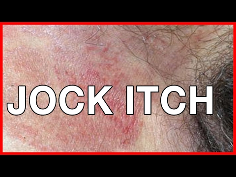 How to Cure Jock Itch Causes of Jock Itch and Remedies