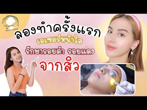 รีวิว Dual yellow เลเซอร์หน้าใสครั้งแรก เห็นผลจริงไหม ต้องตามไปดู Iรีวิวลูกสาวหมอ sowon clinic ep.86