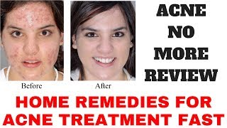 Acne No More Review - Home Remedies For Acne Treatment Fast