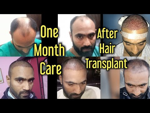 first-30-days-care-after-hair-transplant- -1-month-day-by-day-care-and-precautions-for-best-result