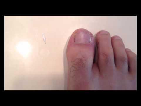 day 75. fix ingrown toenail