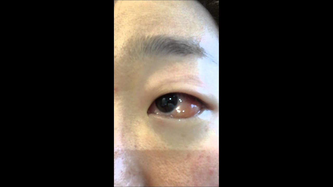 Youtube Eye Makeup Tutorial: Extreme Allergic Reaction In The Eye