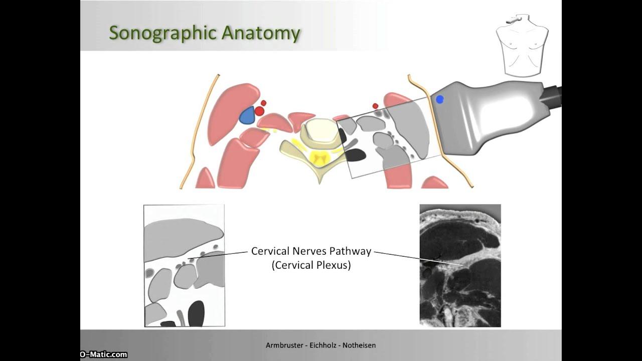 Cervical Plexus Block - Anatomical Correlation - YouTube