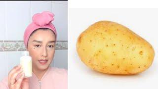 Tónico facial de patatas. lo mejor para acabar con las manchas.
