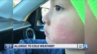 Doctor explains allergy to cold weather