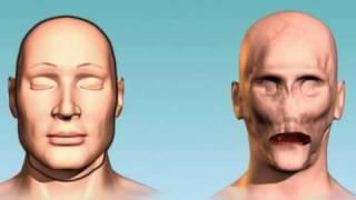 Etats-Unis: première greffe totale du visage
