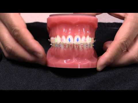 American Orthodontics Radiance Plus Visual Placement Aids (VPAs)