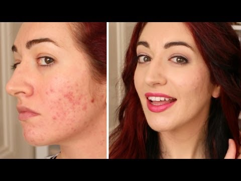 Pop Of PINK! Makeup Tutorial + How To Cover Acne Scarring With BB Cream!