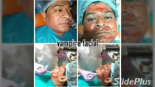 Vampire Facelift India