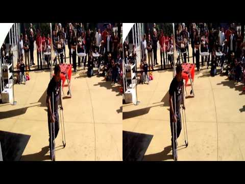 Breakdancing on Crutches in 3D 1of2