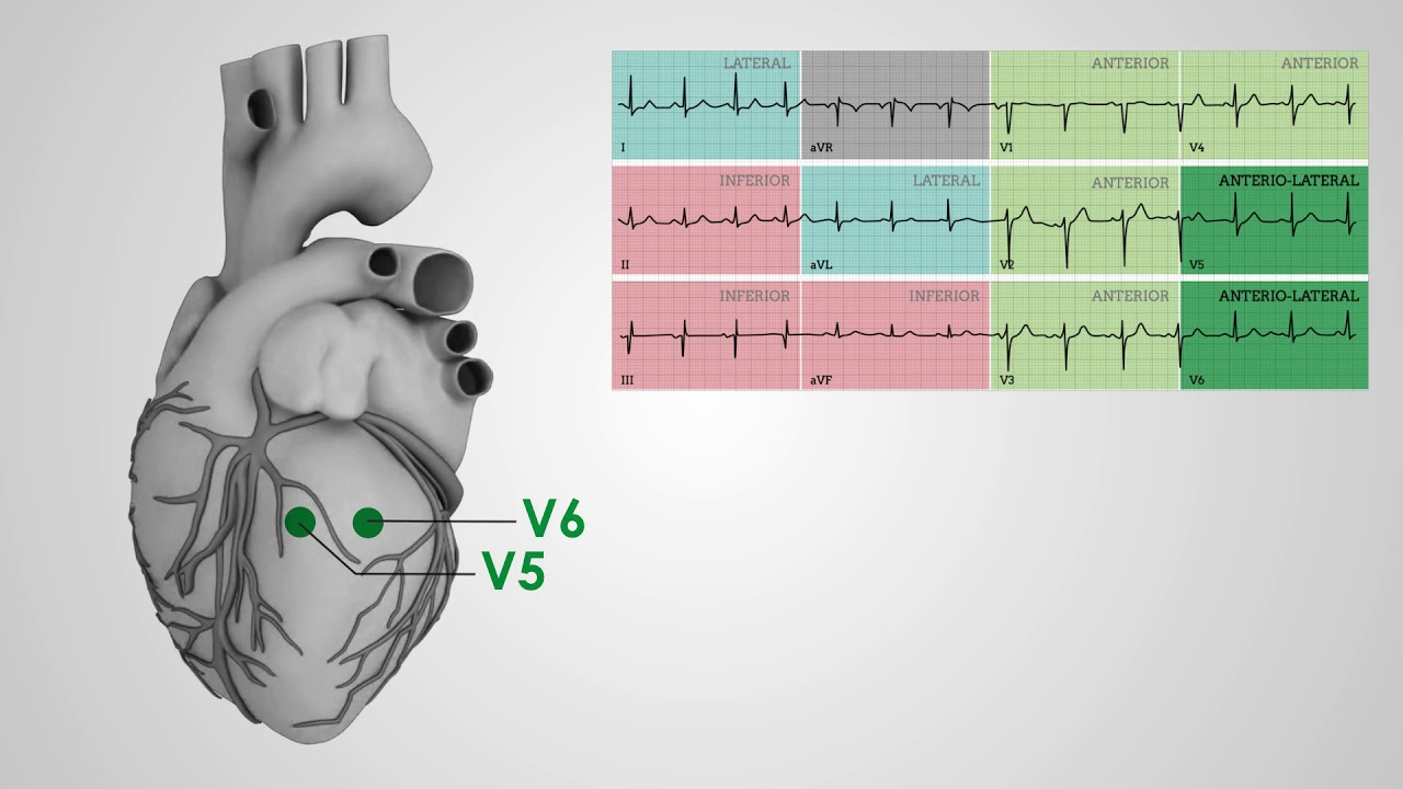 electrical vectors 12 lead ecg placement around the heart [ 1280 x 720 Pixel ]