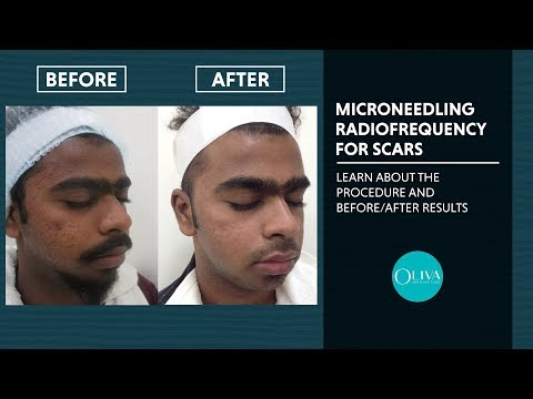 micro-needling-radiofrequency(rf)-treatment,-before-and-after-results---oliva-clinic