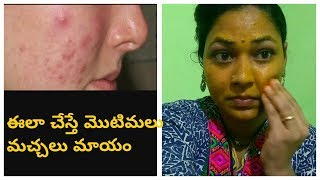 How to remove pimples in 3days.Get rid of pimples snd acn marks in telugu