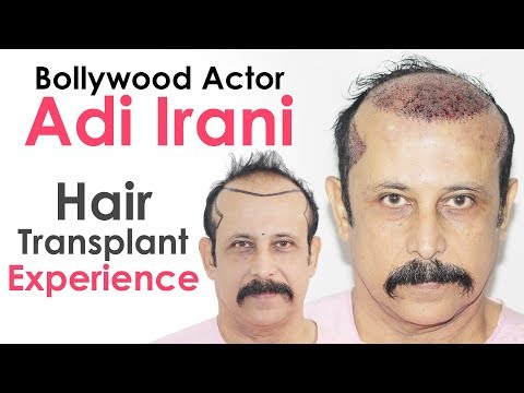 Bollywood Actor Adi Irani Shares Hair Transplant Experience With Dr Suneet Soni | Medispa India