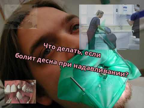 Болит десна при нажатии