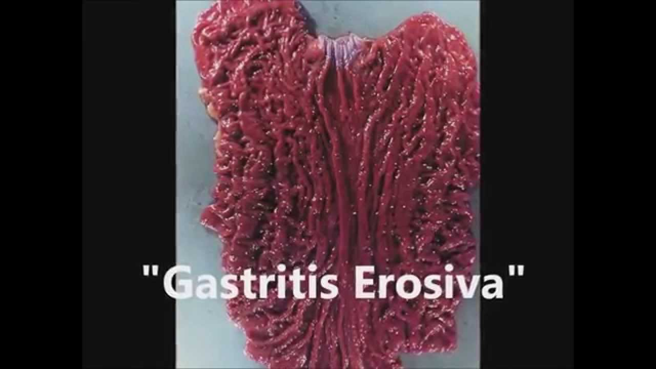 gastritis - medical condition essay University of maryland medical center gastritis stool that has a uncharacteristically foul odor may be caused by infections such as giardiasis or medical conditions.