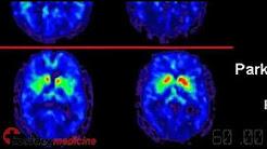 Postmenopausal hormones linked to wet AMD - IN60