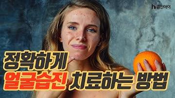 정확하게 얼굴습진 치료하는 방법 [검진하이]