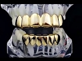 default - Silver-Tone Hip Hop Removeable Mouth Grillz Set (Top & Bottom) Player Style