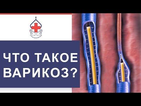 😃  Как вылечить варикоз без операции. Лечение варикоза без операции. 12+