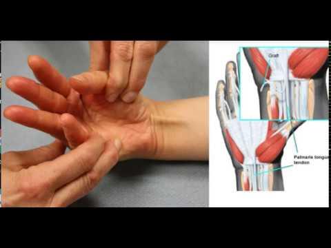 Соедините Большой Палец с Мизинцем! Если вы видите ЭТО СУХОЖИЛИЕ, это означает что...