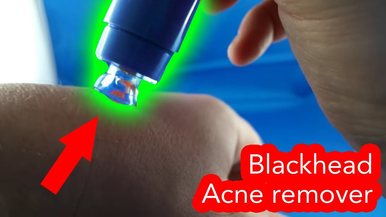 Pore Blackhead Acne Cleaner Remover From Aliexpresscom Unboxing Haul Facial Pembersih Komedo Youtube