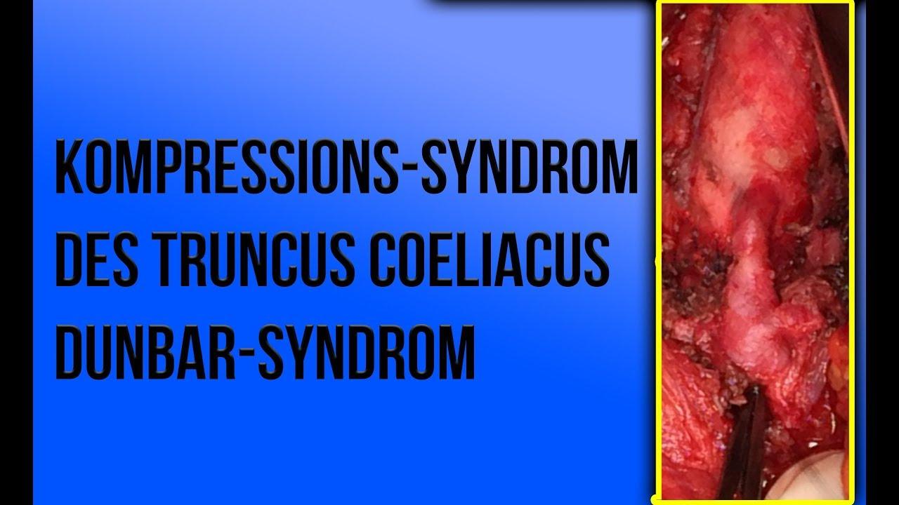 Dunbar Syndrom
