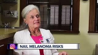 Nail melanomas