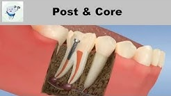 Post and Core After Root Canal Treatment