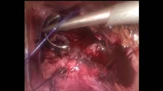 Лапароскопия.  Ушивание разрыва матки после родов