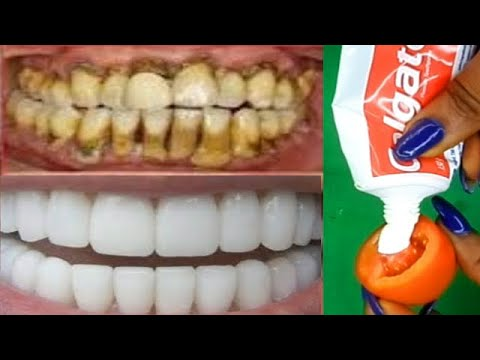 In Just 2 Minutes Whiten Yellow Teeth To White Magical Remedy For